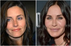 Worst Plastic Surgery Pictures | Bad Plastic Surgery