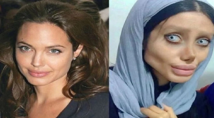 Top 13 Worst Plastic Surgery Pictures Bad Plastic