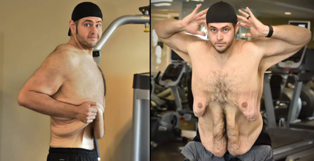 (John Allaire After Losing 300 Pound Of Weight Had A Lot Of Extra Skin To Get Removed Surgically)